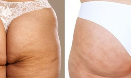 Cellulite vs Stretch Marks