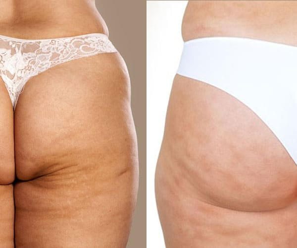 Cellulite Vs Stretch Marks Pharmaquality